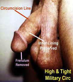 Tight high beschneidung and CIRCLIST