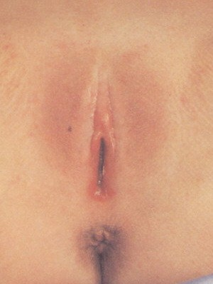 Klitoris beschnittene battmorthindbee: Beschnittene