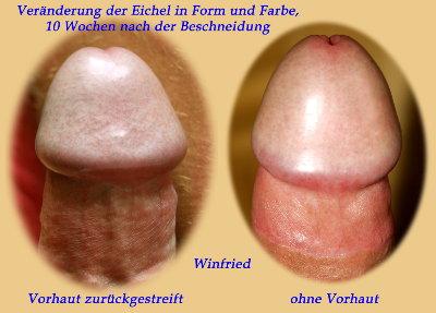 Beschneidung frenulum male circumcision