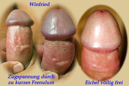 Unbeschnittener Penis frenulum dorsaler Schlitz